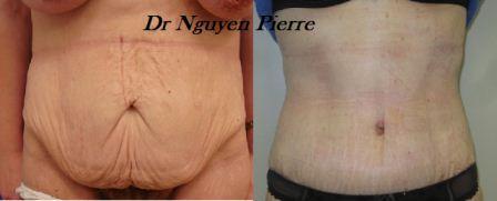 Quelques liens utiles - Operation couper l estomac pour maigrir ...