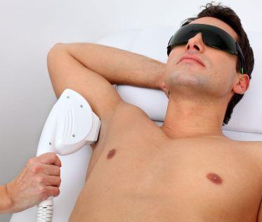 epilation laser homme Toulon