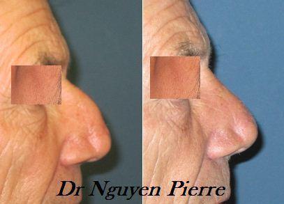Cabinet de chirurgie plastique et esthetique toulonrhinoplastie chirurgie du nez dr nguyen - Bosse sur le nez apres coup ...